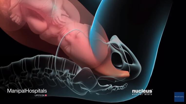 Epiziotomia - taierea perineului in timpul nasterii vaginale! Cum se face si cum poate fi evitata VIDEO | Demamici.ro